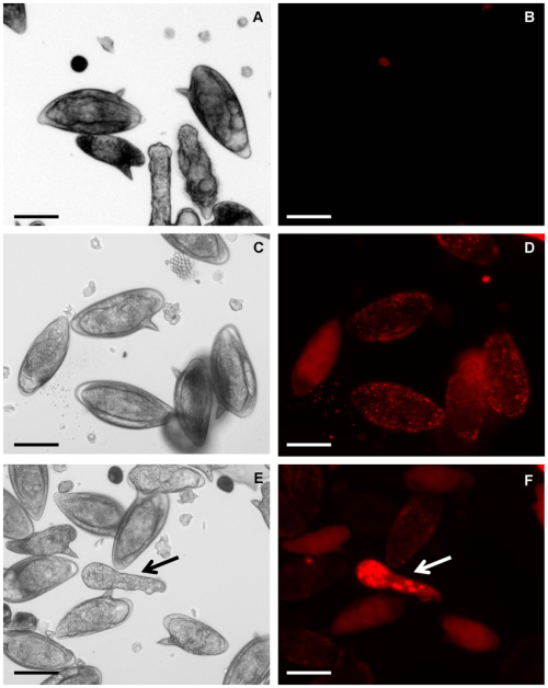 small resolution of fluorescent labeled short interfering rna enters cultured eggs of schistosoma mansoni representative images of schistosome