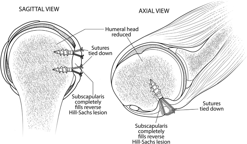 Sagittal and axial views of the shoulder show completion