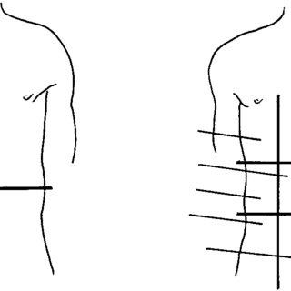 (PDF) Acute surgical emergencies