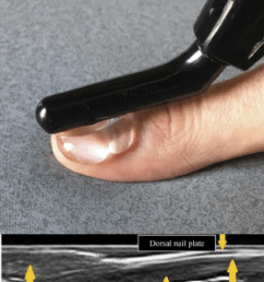 ultrasonography of the nail and the reference position  [ 850 x 1338 Pixel ]