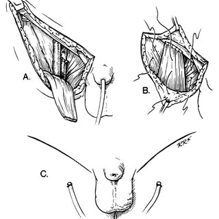 Incisions for radical inguinal lymphadenectomy. Single