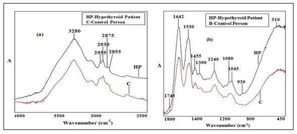 Overlaid FTIR-ATR spectra of control and hypothyroid hair