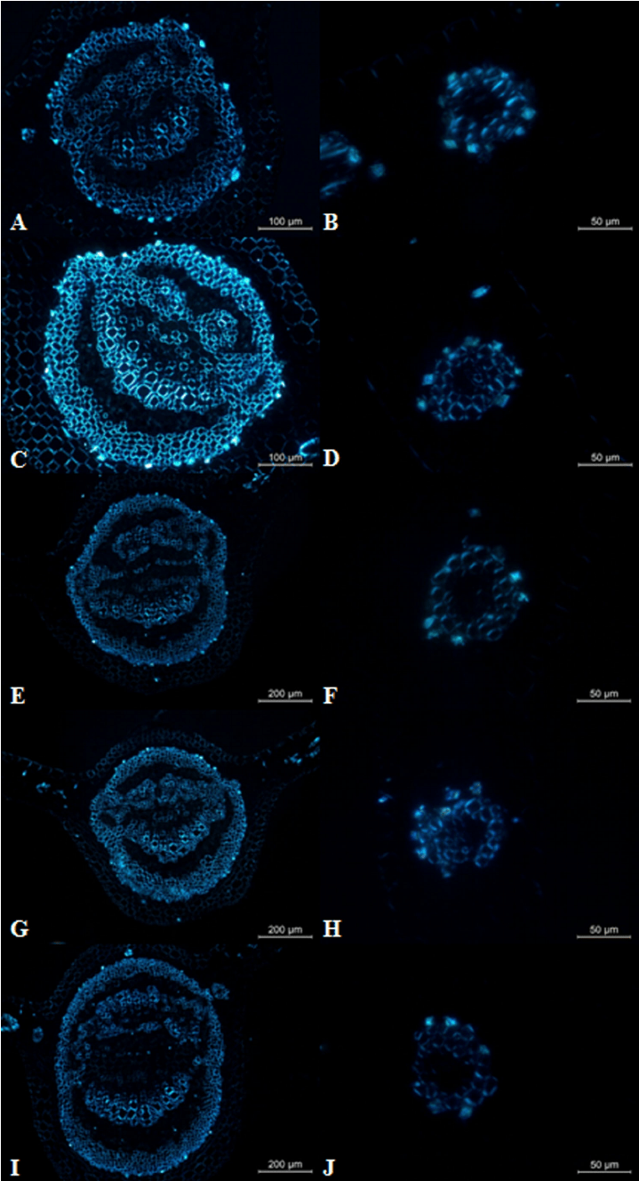 hight resolution of polarized light microscopy of leaves of young plants of i subnuda subjected to different concentrations