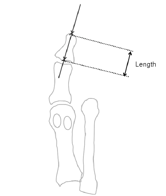 Method of measuring the length of the distal phalanx of