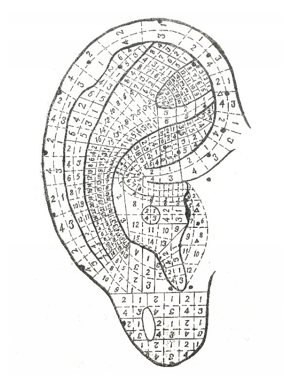 Standard project of auricular acupuncture points by the
