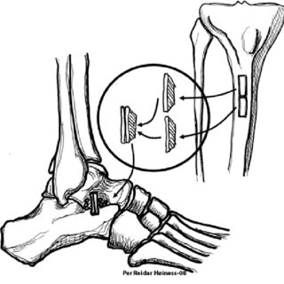 (PDF) Grice arthrodesis in the treatment of valgus feet in