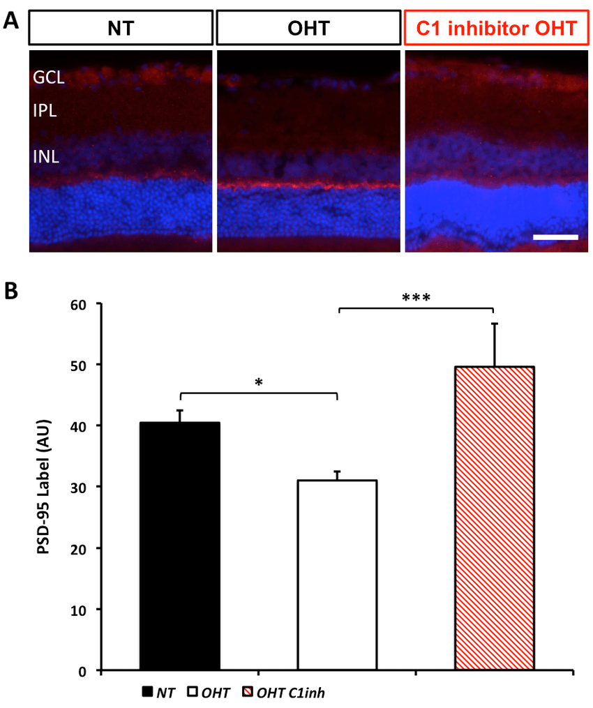 hight resolution of ocular hypertensive rat eyes exhibit early inner plexiform layer synapse loss which is absent in