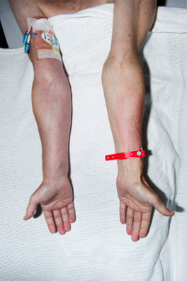 Right sided PICC and associated plethoric swollen arm ...
