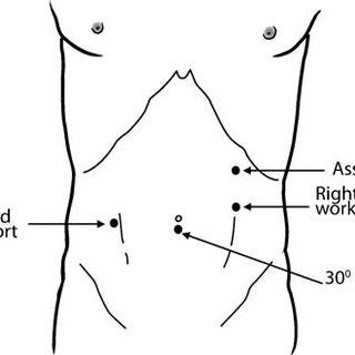 sma syndrome diagram