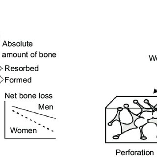 (PDF) Osteoporosis in men: Its pathophysiology and the