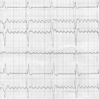 (PDF) Mode switching failure during atrial flutter: the '2