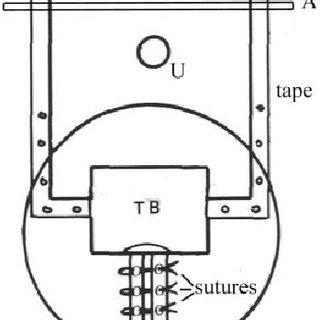 Prototype adjustable midurethral sling The Mersilene tape