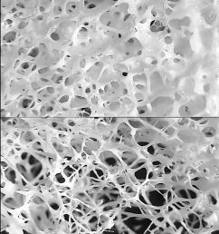 bone structure of 54 year old female top and a 74 year old female [ 768 x 1152 Pixel ]