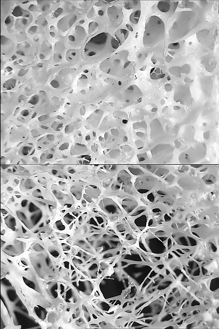 hight resolution of bone structure of 54 year old female top and a 74 year old female