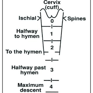 Baden–Walker half way system [6]. It consists of four