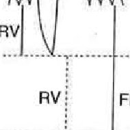 (PDF) Lung volumes and forced ventilatory flows. Report