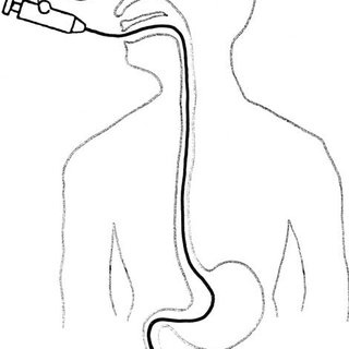 Removal of the guidewire and nasal transfer of the tube