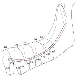 Distances of the mandibular canal to the buccal cortex of