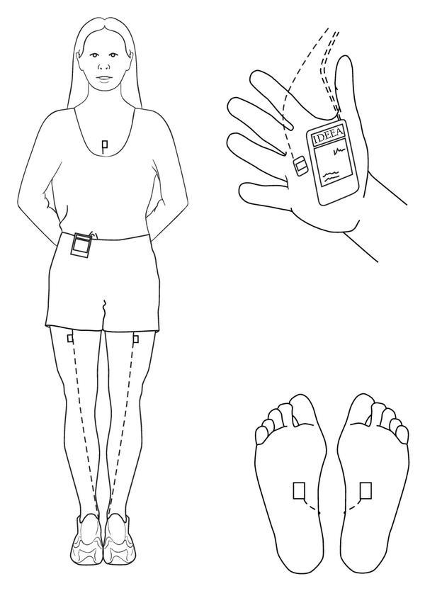 Representative diagram showing the IDEEA monitor secured