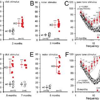 (PDF) Progressive hearing loss and gradual deterioration