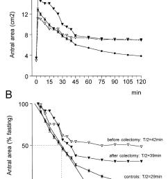 ultrasonographic study of postprandial gastric emptying showing download scientific diagram [ 850 x 1191 Pixel ]