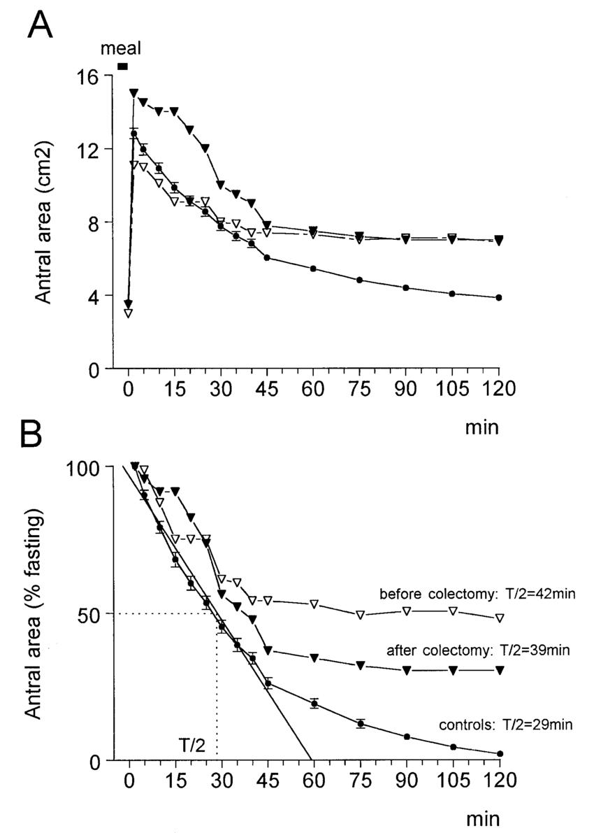 medium resolution of ultrasonographic study of postprandial gastric emptying showing download scientific diagram