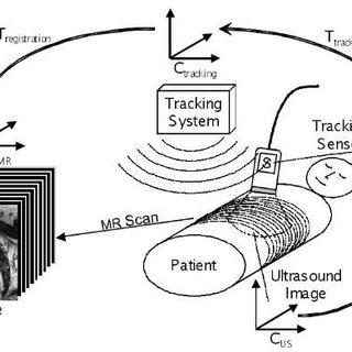 (PDF) Biopsy Needle Detection in Transrectal Ultrasound