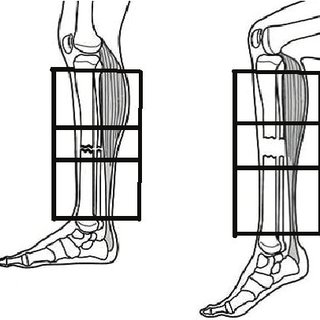 (PDF) Results and biomechanical consideration of treatment
