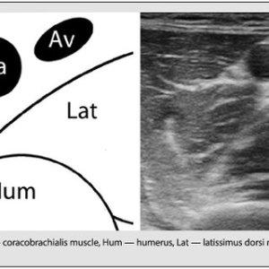(PDF) Ultrasoundguided axillary brachial plexus block