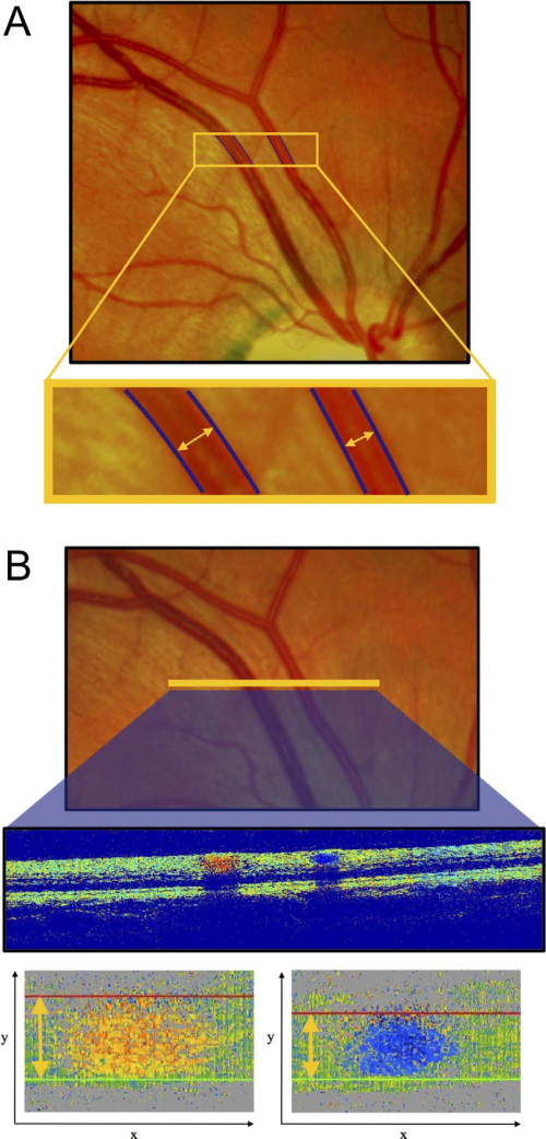 small resolution of sample measurement in a healthy subject fundus image a and oct phase download scientific diagram