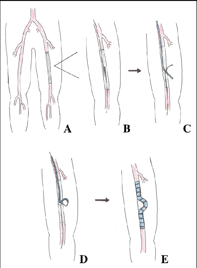 Schematic diagram of Viabahn-assisted bypass. (A