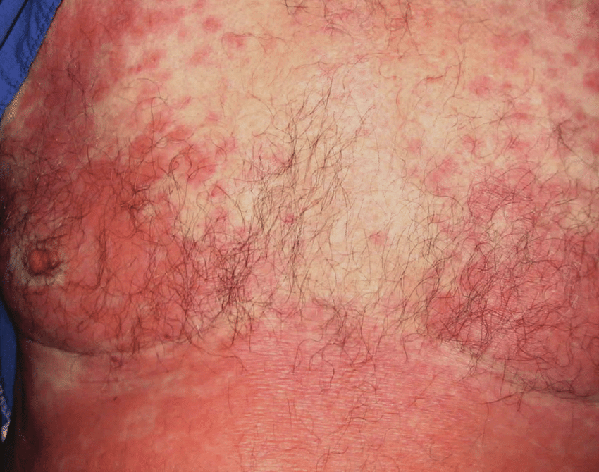 Erythematous patchy confluent raised skin rash over the ...