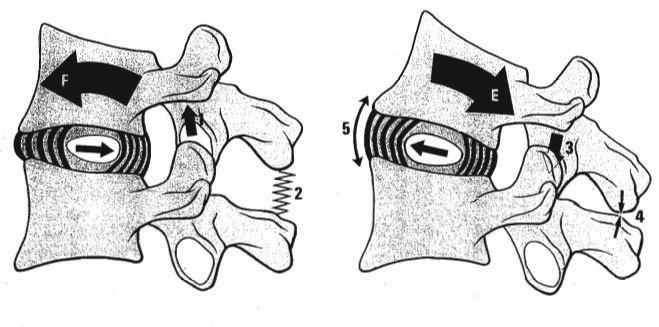 11: Movement of the nucleus pulposus in the intervertebral