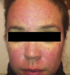 rosacea patient 1 twelve hours after application of brimonidine tartrate to forehead cheeks [ 850 x 1300 Pixel ]