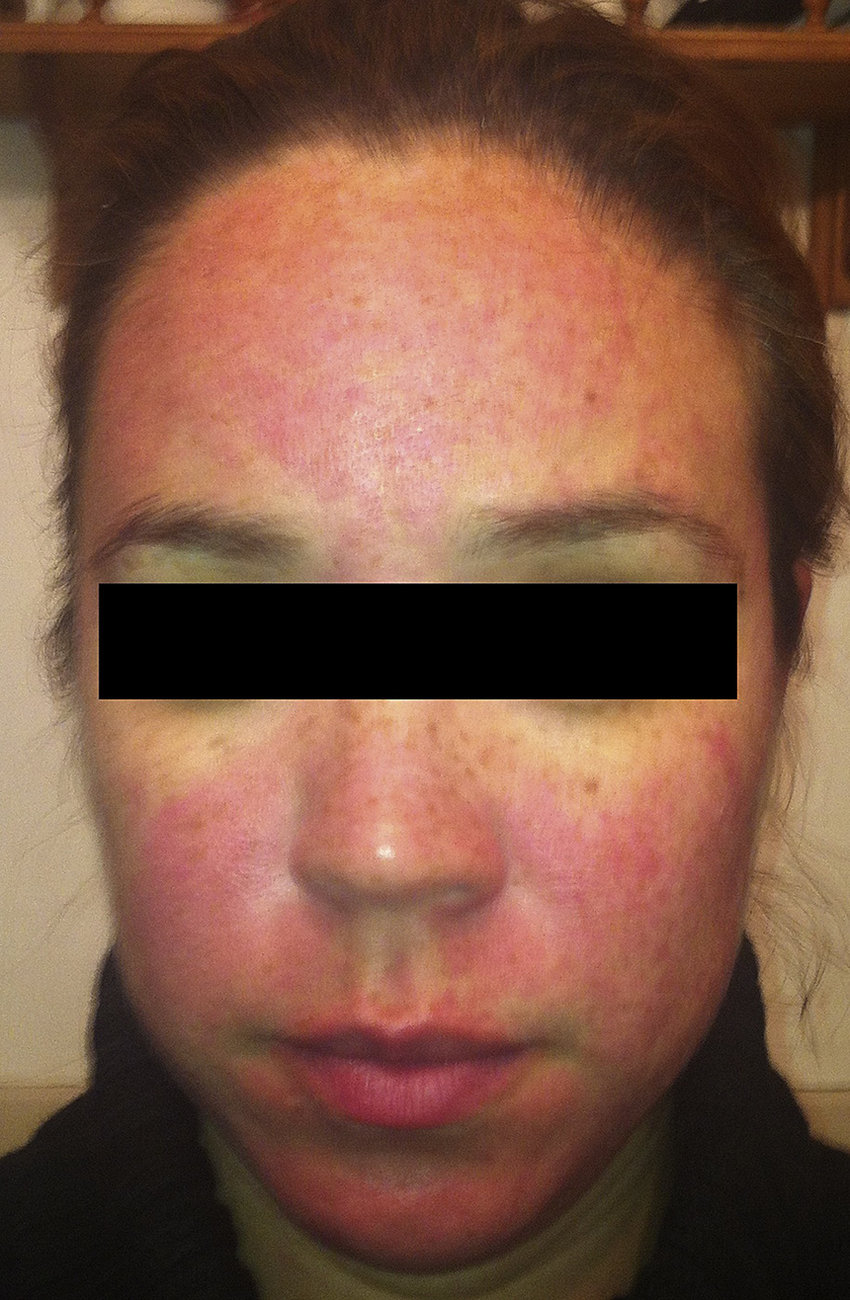 medium resolution of rosacea patient 1 twelve hours after application of brimonidine tartrate to forehead cheeks