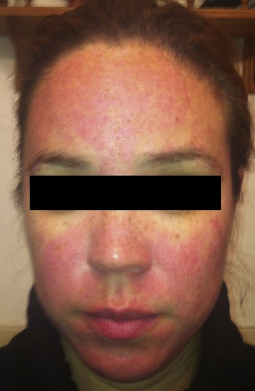 small resolution of rosacea patient 1 twelve hours after application of brimonidine tartrate to forehead cheeks