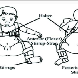(PDF) Developmental Dysplasia of the Hip