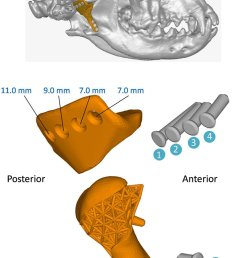 assembly diagram of the customized tmj prosthesis top panel full view of the prosthesis [ 850 x 1352 Pixel ]