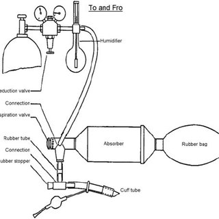Patient receiving mechanical ventilation during the Polio