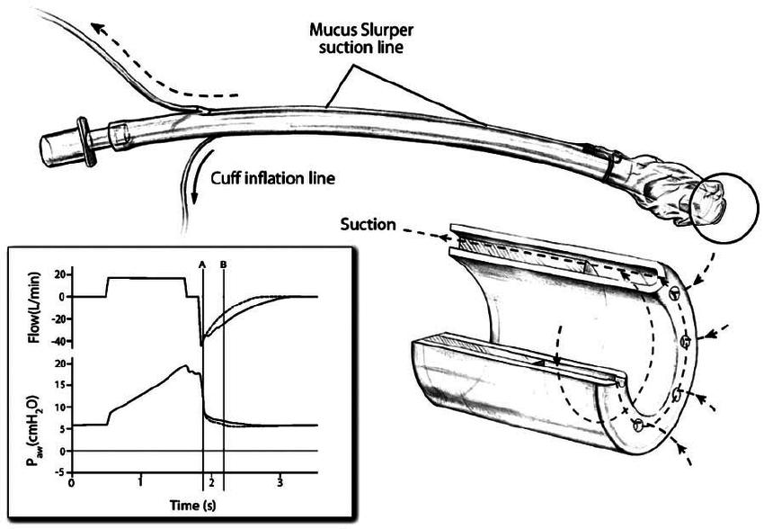 The Mucus Slurper endotracheal tube, a modification of a