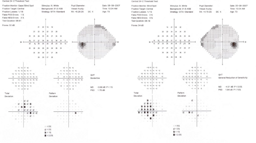 Humphrey visual fields (24-2 SITA-Standard) demonstrate