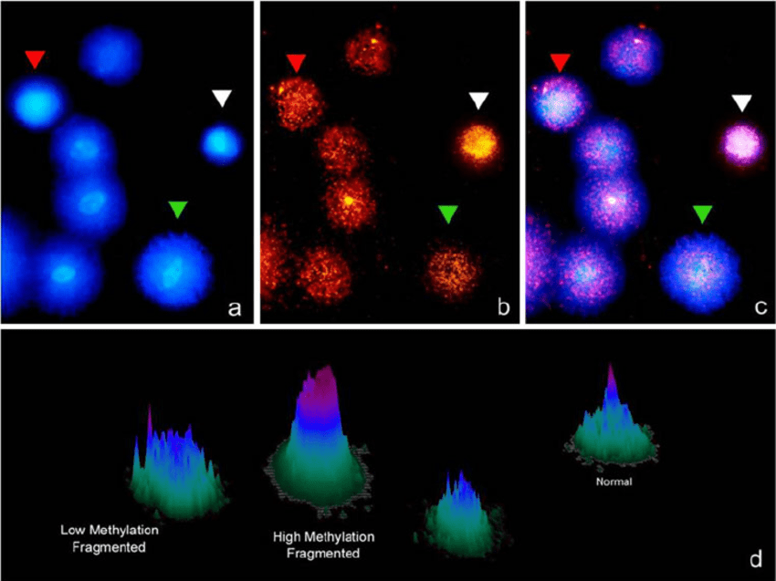 Sperm DNA fragmentation using the SCD test (Halosperm ...