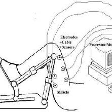 (PDF) Treatment effectiveness of continuous passive motion