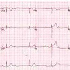 ECG showing complete heart block | Download Scientific Diagram