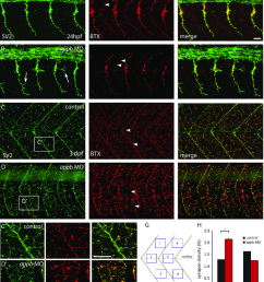 increased pre synapses and decreased post synapses neuromuscular synapses are labeled with antibodies against sv2 green pre synaptic vesicles and btx  [ 850 x 996 Pixel ]