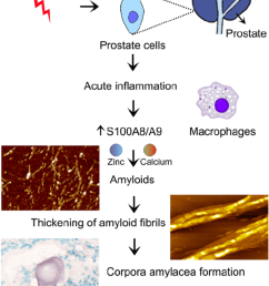 inflammation dependent pathways of the prostate ca formation infection inflammation and amyloid self [ 850 x 1521 Pixel ]