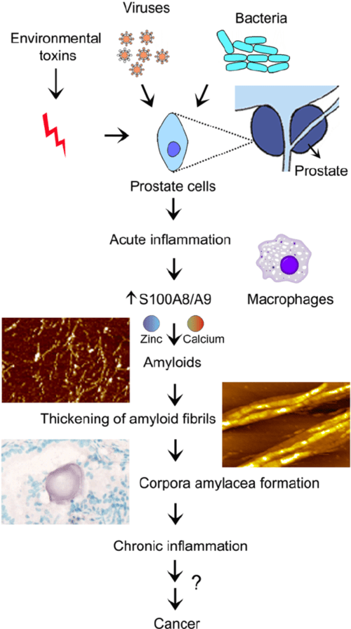 small resolution of inflammation dependent pathways of the prostate ca formation infection inflammation and amyloid self