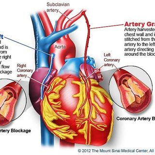 diagram of a heart bypass graft bacterial cell and functions ein artery grafts are attached to the heart. during cabg, a... | download scientific ...