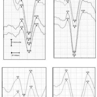 (PDF) Utility of flash visual evoked potentials in infants