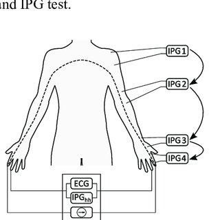 ECG recording of a premature ventricular contraction